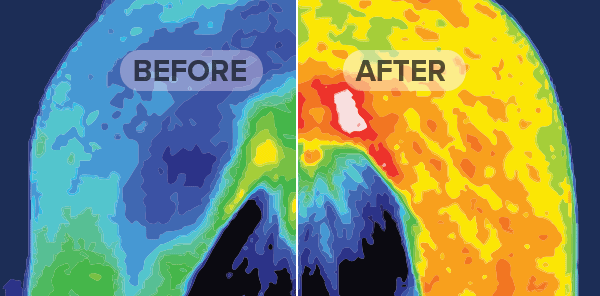 Thermography Study: Before & After